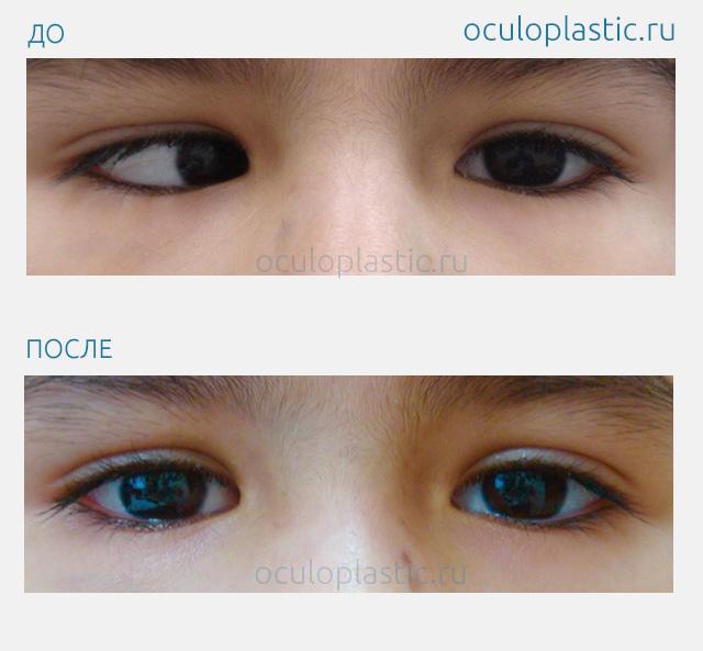 Восстановить зрение ребенку народные средства